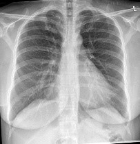 lung infiltrates
