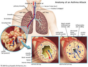 anatomy-of-an-asthma-attack-1